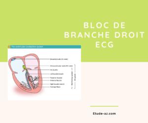 Bloc de branche droit ECG