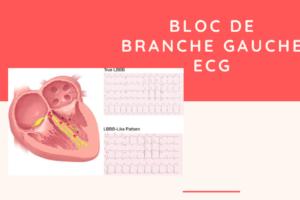 Bloc de branche gauche ECG