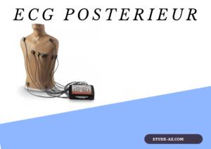 ECG posterieur
