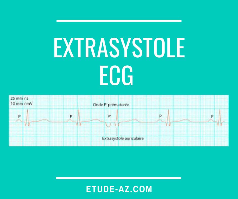 Extrasystole ECG