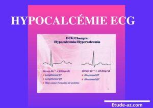 Hypocalcémie ECG