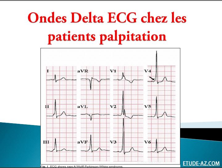 Onde delta ECG