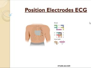 Position Electrodes ECG